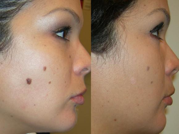 facial mole remedy removal
